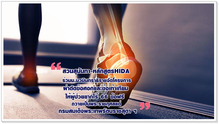 สวนสุนันทา-หลักสูตร HIDA ร่วมม.นวมินทราธิราช จัดโครงการผ่าตัดข้อศอกและข้อเท้าเทียม ให้ผู้ป่วยยากไร้ 66 ข้อฟรี ถวายเป็นพระราชกุศลแด่ กรมสมเด็จพระเทพรัตนราชสุดา ฯ